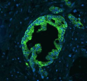 Stammzellforschung: von der Krebsursache zum medizinischen Fortschritt