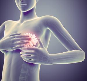 Mammographie-Screening-Programm senkt Auftreten fortgeschrittener Tumorstadien