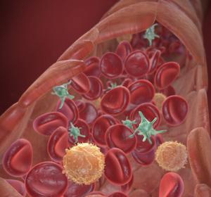 Antikoagulation: Bei Tumorpatienten meist NMH indiziert