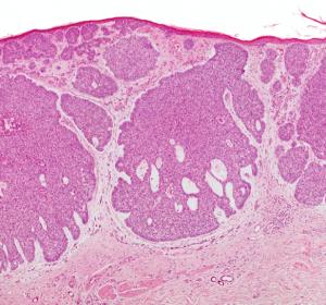 Behandlungsmöglichkeiten bei epithelialem Hautkrebs und Merkelzellkarzinom