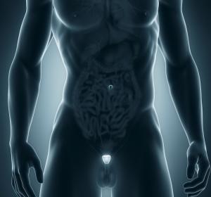 Langzeitergebnisse nach 10 Jahren – Vergleich unterschiedlicher Therapien beim Prostatakarzinom