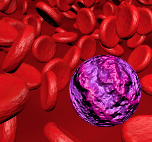 MDS und MDS/AML: Mutationsstatus könnte Prognose nach HSCT präzisieren