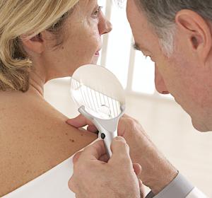 Neue Therapiemöglichkeiten in der Dermato-Onkologie
