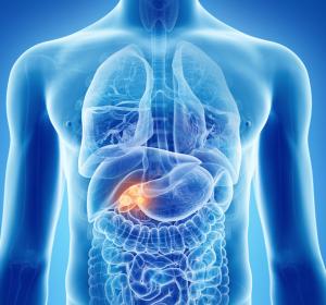 Gallengangkarzinome: Next-Generation-Sequencing in der klinischen Praxis