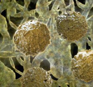 Innovationspreis für neuen Therapieansatz beim Myelodysplastischen Syndrom