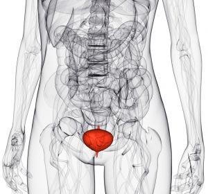 Leitlinienprogramm Onkologie veröffentlicht S3-Leitlinie zum Harnblasenkrebs