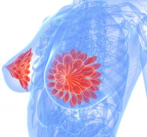 Mammakarzinom: Candesartan verhindert Trastuzumab-assoziierte Kardiotoxizität nicht/ SIngle-Polymorphismus Ala1170Pro zur Risikostratifizierung?