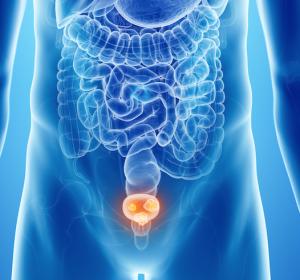 Nivolumab bei Patienten mit fortgeschrittenem Urothelkarzinom