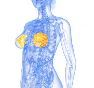 Phase-I-Ergebnisse zu AK-Konjugat DS-8201a bei T-DM1-vorbehandelten Brustkrebspatientinnen