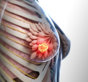 Höhere Mammakarzinom-spezifische Mortalität bei älteren Patientinnen