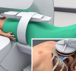Strahlentherapie und fokussierten Ultraschall kombinieren