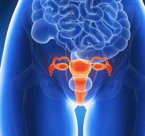 Ovarialkarzinomrezidiv nach Platintherapie: PFS-Verlängerung bei Erhaltungstherapie mit PARP-Inhibitor Niraparib