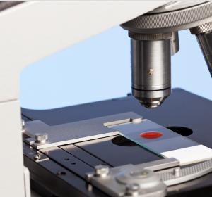 CLL%3A+Tumorwachstum+%E2%80%93+LYN+Kinase+im+Mikromilieu+ist+entscheidend
