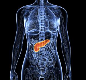 Adenokarzinom des Pankreas: EU-Zulassung für pegyliertes liposomales Irinotecan