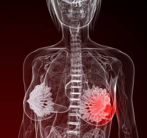 Erstlinientherapie des fortgeschrittenen HR-positiven/HER2-negativen Mammakarzinoms: Längeres PFS mit Ribociclib plus Letrozol
