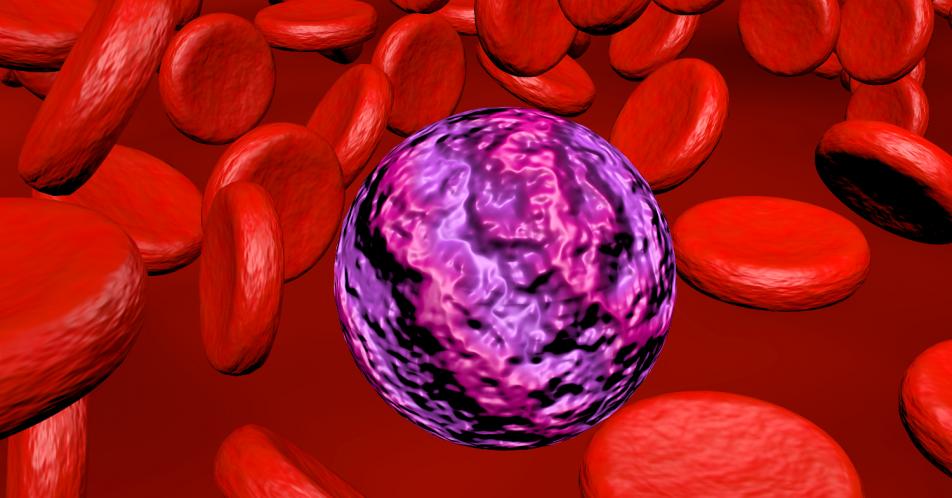 r%2Fr-ALL%3A+Bessere+Chance+auf+Heilung+mit+Inotuzumab+Ozogamicin