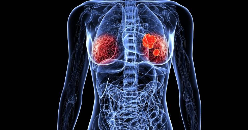 Fr%C3%BChes+HER2-positives+Mammakarzinom%3A+CHMP+empfiehlt+Trastuzumab+Emtansin+f%C3%BCr+die+post-neoadjuvante+Therapie