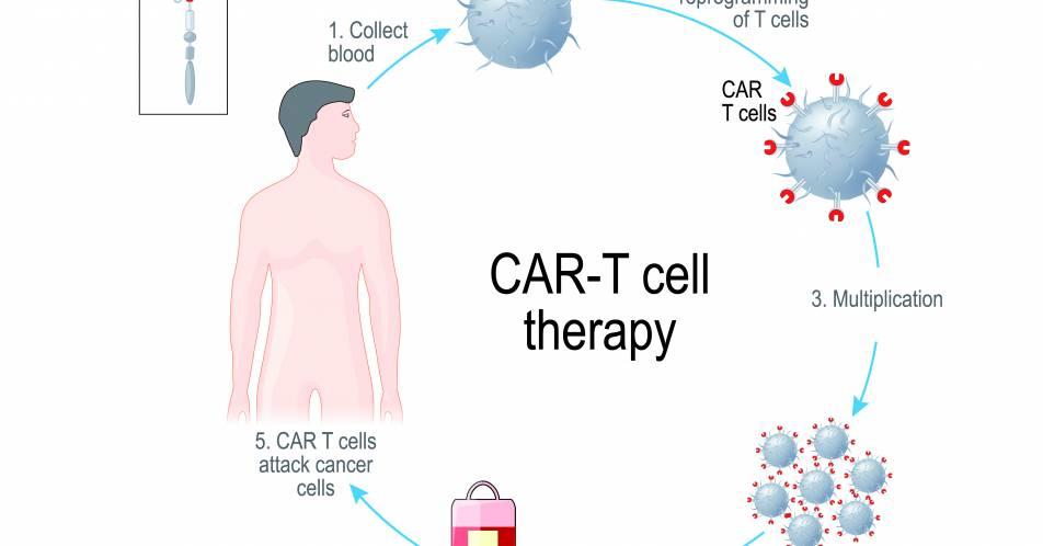 Therapieoption+bei+schwieriger+Prognose+%E2%80%93+Tisagenlecleucel+und+Midostaurin+in+der+Praxis