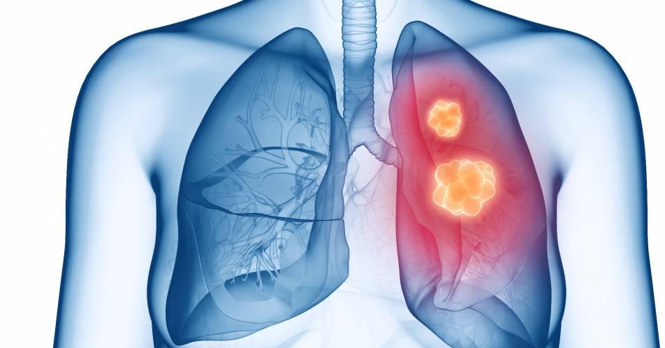 NIS+VARGADO%3A+Nintedanib+%2B+Docetaxel+nach+vorangegangener+Immuncheckpoint-Inhibition+beim+NSCLC+sinnvolle+Option