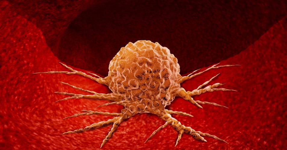 Refrakt%C3%A4re+B-Zell-Lymphome+und+CAR-T-Zellen%3A+Auch+in+der+Praxis+wirksam+und+gut+vertr%C3%A4glich