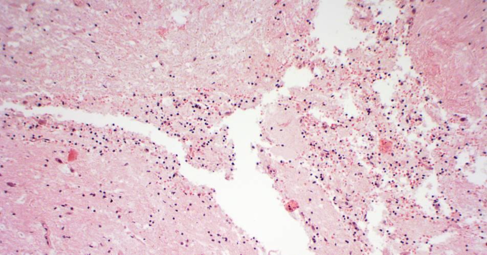 Hirntumoren%3A+Pr%C3%A4zise+Charakterisierung+von+Immunzellen+