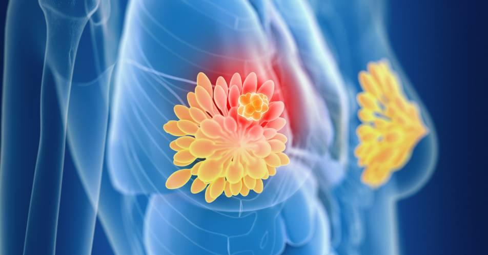 COVID-19%3A+ESMO-Empfehlungen+zur+Therapie+von+Brustkrebspatientinnen