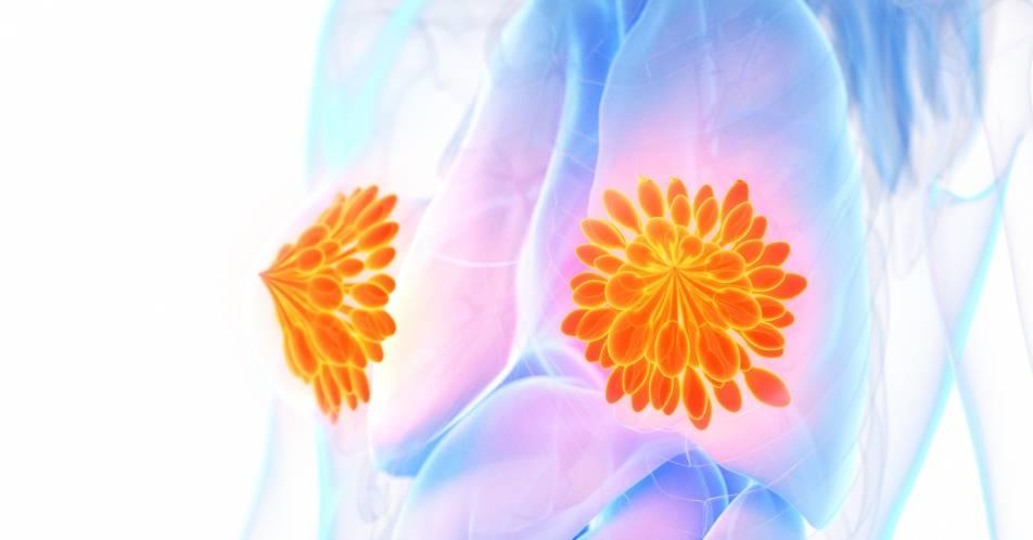 Mammkarzinom+mit+BRCA1%2F2-Mutation%3A+Mehr+Lebensqualit%C3%A4t+unter+Talazoparib