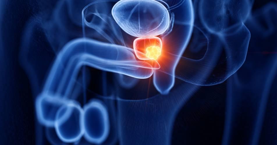 High-risk+Prostatakarzinom%3A+Wirksamkeit+von+Triptorelin+nach+radikaler+Prostatektomie