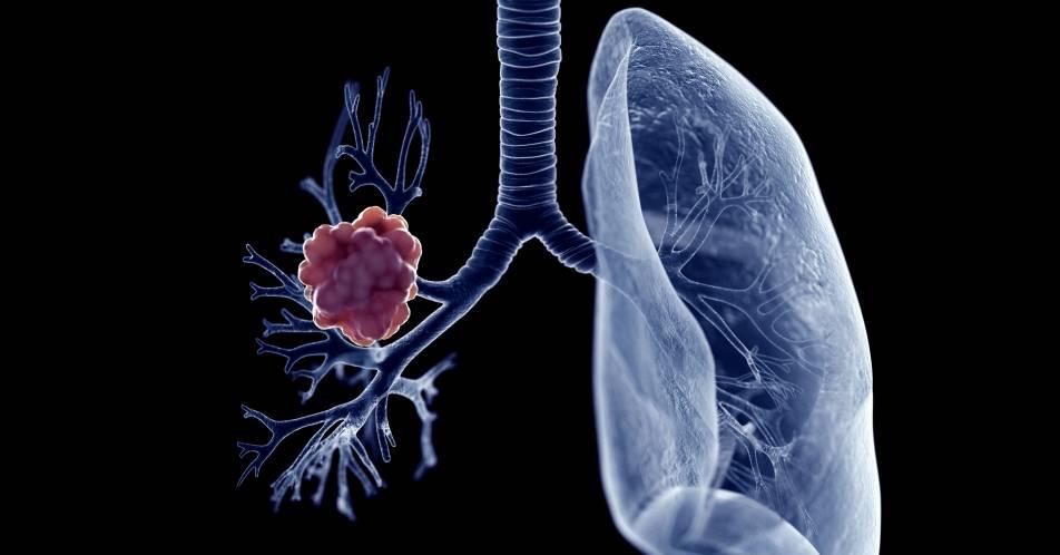 aNSCLC%3A+Blut-basiertes+genomisches+Profiling+aus+der+BFAST-Studie+mit+Real-World-Daten+vergleichbar