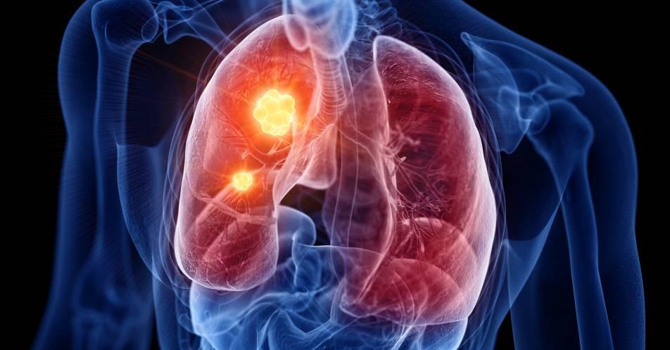 ESMO%3A+Neue+zielgerichtete+Therapiekonzepte+bei+NSCLC+und+Prostatakarzinom