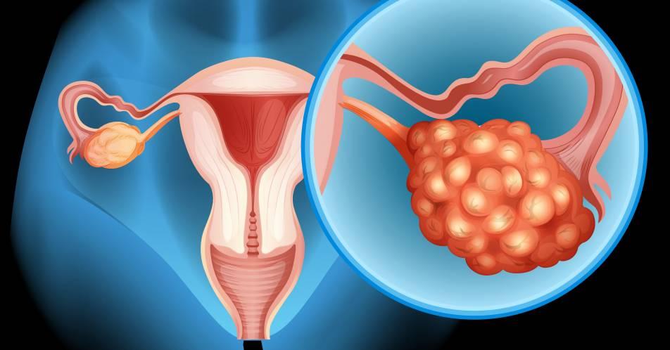 Ovarialkarzinom%3A+Erhaltungstherapieoptionen+f%C3%BCr+Patientinnen+mit+fortgeschrittenen+Tumoren