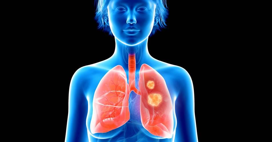 Brust-+und+Lungenkrebs%3A+Pro-tumorale+Inflammation+als+neues+Ziel+der+Krebstherapie%3F