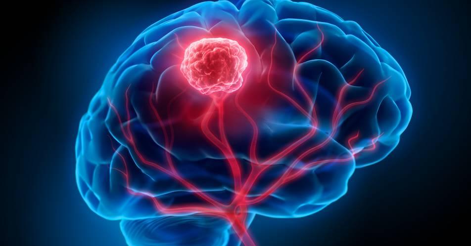 Neue+Guidelines+f%C3%BCr+die+Behandlung+von+Komplikationen+bei+Hirntumoren