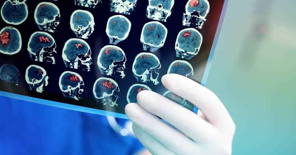 Punktgenaue+Behandlung+mit+Gamma+Knife+bei+Kopf-Tumoren+