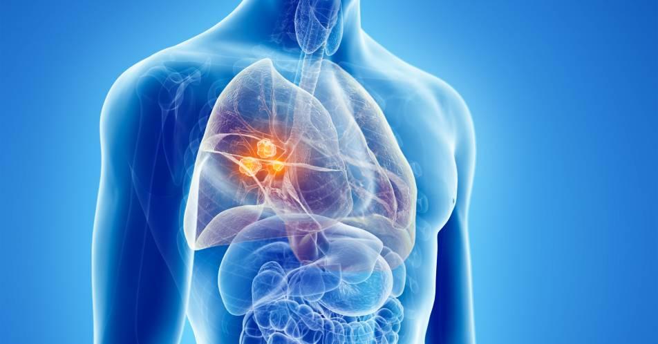 Krebsimmuntherapie+sicher+und+wirksam+als+Monotherapie+beim+NSCLC+und+in+der+Erhaltungstherapie+beim+ES-SCLC