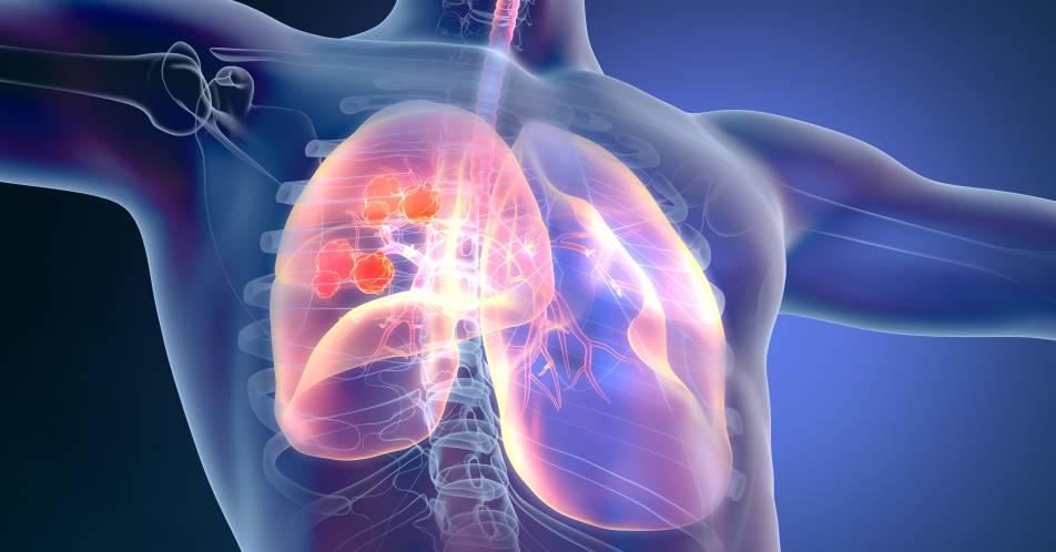 EGFRm+NSCLC%3A+Osimertinib+verl%C3%A4ngert+DFS+unabh%C3%A4ngig+von+adjuvanter+Chemotherapie