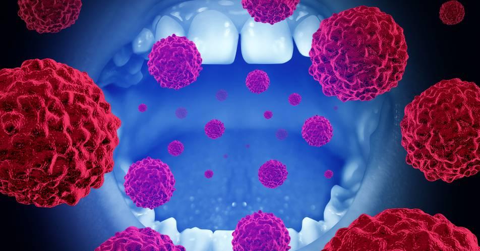 Neue+Leitlinienempfehlungen+zum+Mundh%C3%B6hlenkarzinom