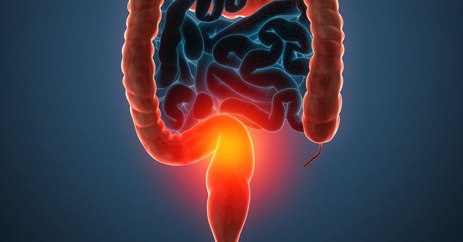 Organisierte+Darmkrebsfru%CC%88herkennung%3A+Historische+Entwicklung%2C+aktueller+Stand+und+Fehlentwicklungen