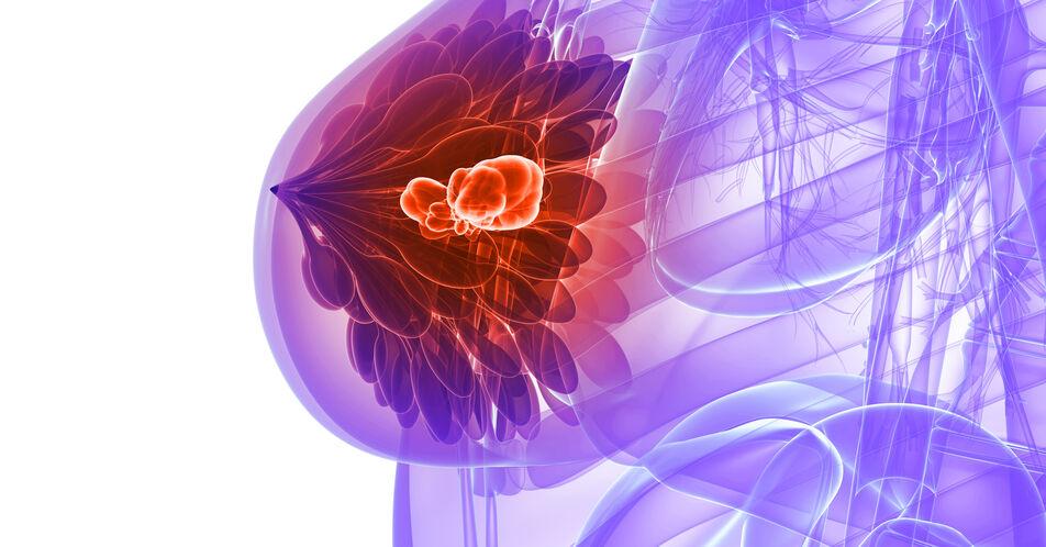 r%2Fr+mTNBC%3A+Sacituzumab+Govitecan+auch+bei+%C3%A4lteren+Patientinnen+wirksam+und+sicher
