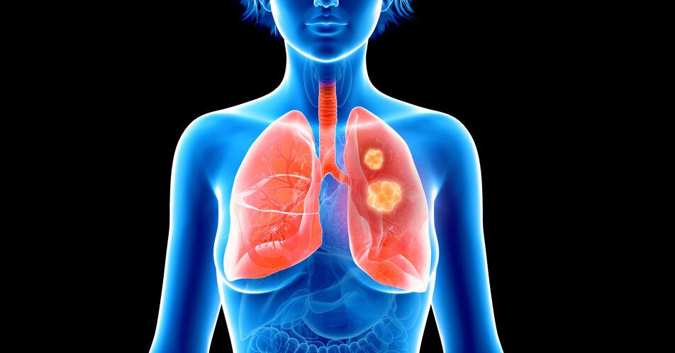 NSCLC%3A+Ergebnisse+zum+medianen+Gesamt%C3%BCberleben+unter+Lorlatinib