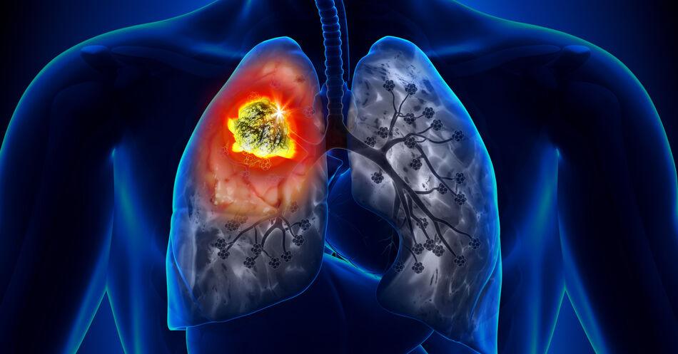 NSCLC%3A+Biomarker-Testung+nimmt+zu+