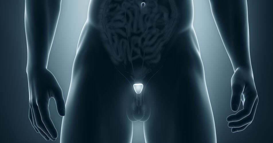 Prostatakrebs%3A+Bayer+erweitert+Portfolio+um+PSMA-Therapie