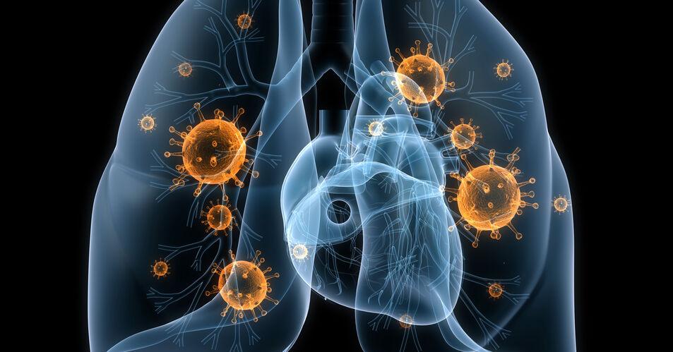 NSCLC%3A+Daten+zu+Kombinationstherapie+mit+Amivantamab+%2B+Lazertinib