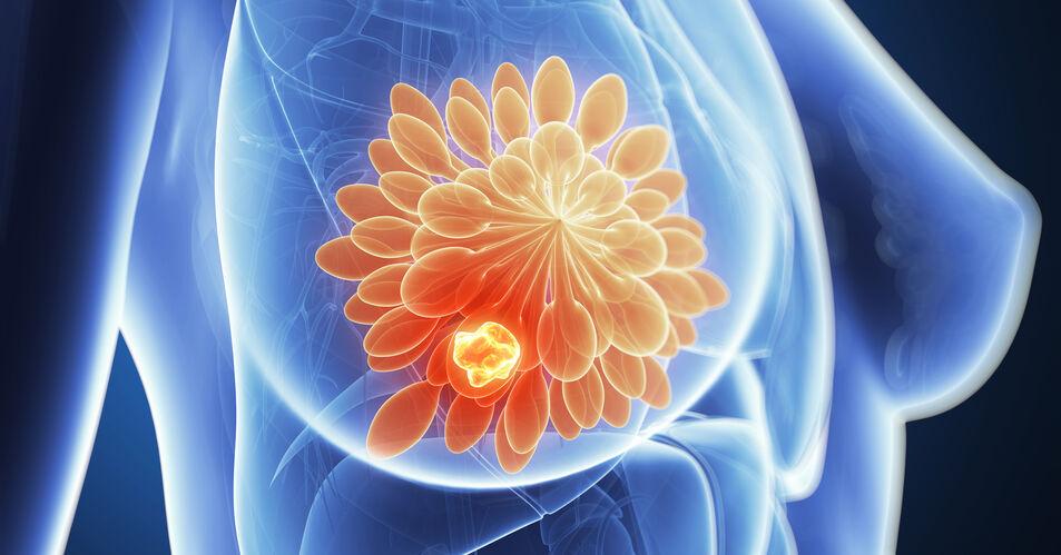 HR%2B+HER2-+Brustkrebs%3A+Wer+braucht+tats%C3%A4chlich+eine+Chemotherapie%3F