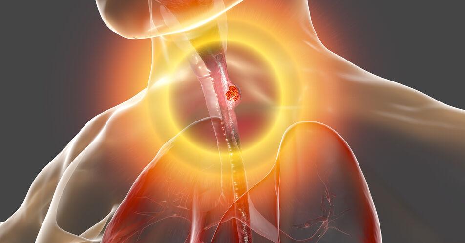 Fortgeschrittenes+%C3%96sophaguskarzinom%3A+Welche+Betroffenen+profitieren+von+Chemoimmuntherapie%3F