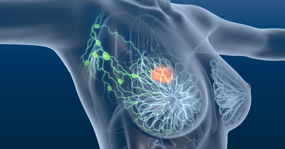 Systemische+Therapie+bei+Brustkrebs+%E2%80%93+Leitlinienempfehlungen+aktualisiert