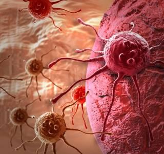 Krebstherapie-Nebenwirkungen wirksam bekämpfen, Patienten unterstützen – Bundesweit gültige Leitlinie verabschiedet