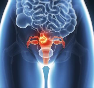 Ovarialkarzinom – Vorsorge kann Leben retten