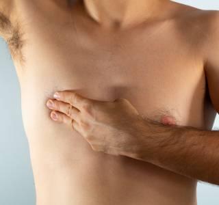 Brustkrebs bei Männern