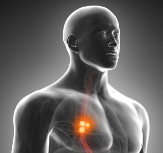 Reflux+erh%C3%B6ht+das+Tumorrisiko